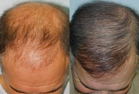 Follicular Unit Hair Grafting before and after photos in San Francisco, CA, Patient 13666