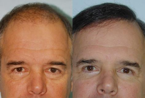 Follicular Unit Hair Grafting before and after photos in San Francisco, CA, Hair Restoration in San Francisco, CA