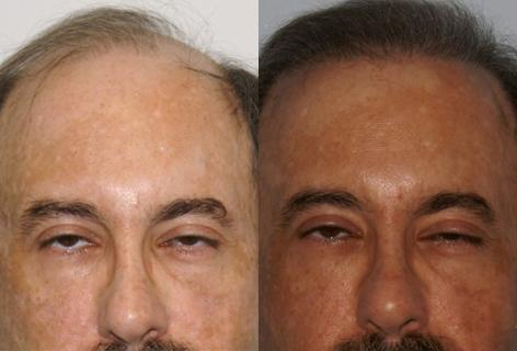 Follicular Unit Hair Grafting before and after photos in San Francisco, CA, Patient 13703