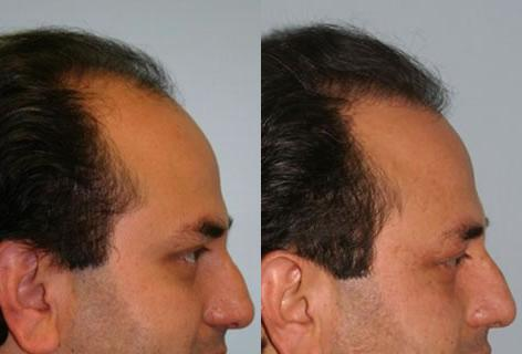 Follicular Unit Hair Grafting before and after photos in San Francisco, CA, Patient 13708