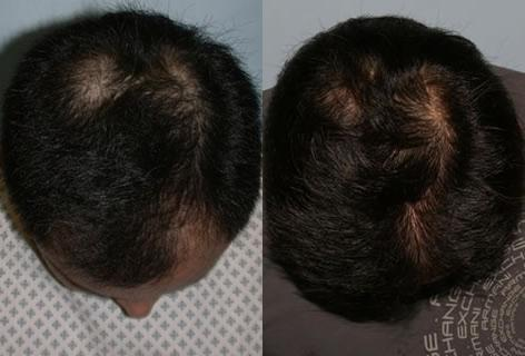 Follicular Unit Hair Grafting before and after photos in San Francisco, CA, Patient 13717