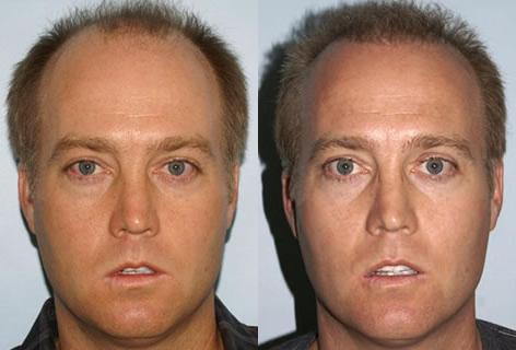 Follicular Unit Hair Grafting before and after photos in San Francisco, CA, Patient 13726
