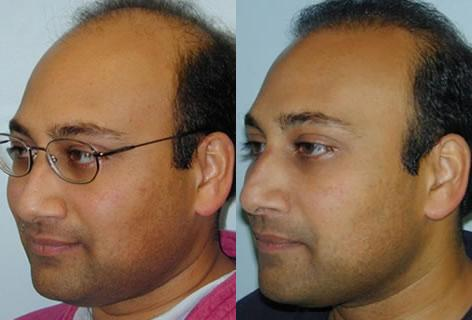 Follicular Unit Hair Grafting before and after photos in San Francisco, CA, Patient 13733