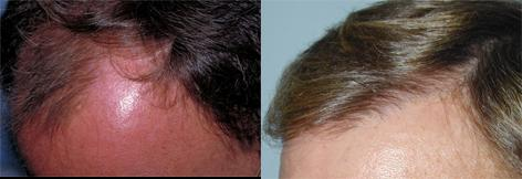 Follicular Unit Hair Grafting before and after photos in San Francisco, CA, Patient 13747
