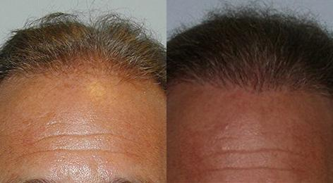 Follicular Unit Hair Grafting before and after photos in San Francisco, CA, Patient 13752