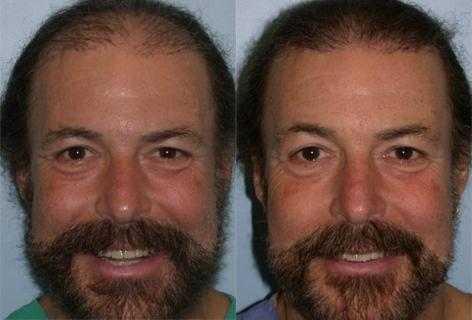 Follicular Unit Hair Grafting before and after photos in San Francisco, CA, Patient 13757