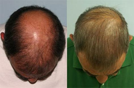 Follicular Unit Hair Grafting before and after photos in San Francisco, CA, Patient 13764