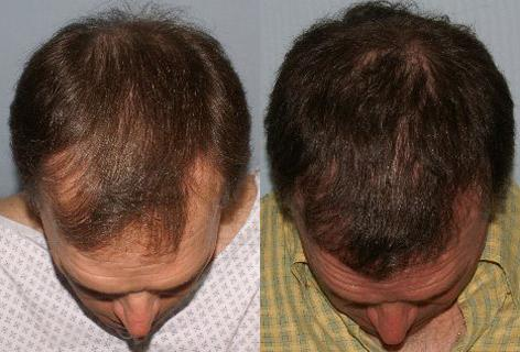 Follicular Unit Hair Grafting before and after photos in San Francisco, CA, Patient 13772