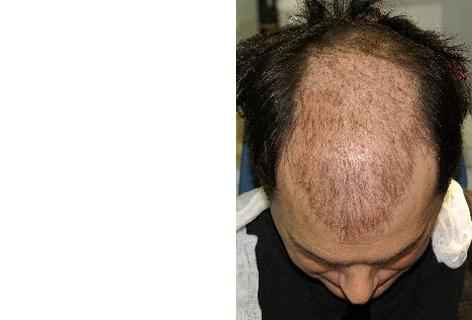 Follicular Unit Hair Grafting before and after photos in San Francisco, CA, Patient 13781