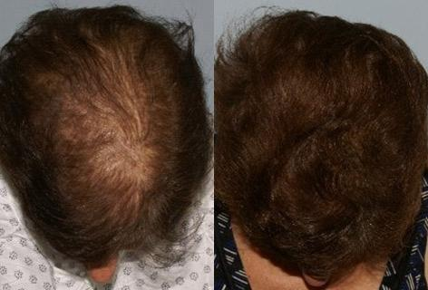 Follicular Unit Hair Grafting before and after photos in San Francisco, CA, Patient 13795