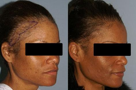 Follicular Unit Hair Grafting before and after photos in San Francisco, CA, Patient 13802