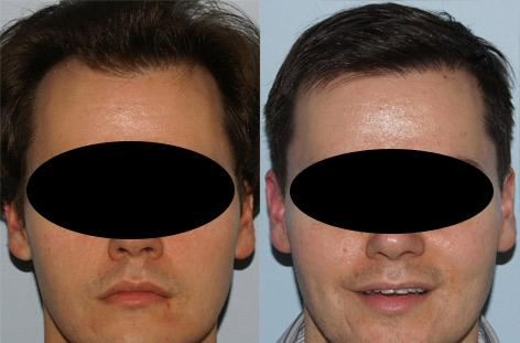 Follicular Unit Hair Grafting before and after photos in San Francisco, CA, Patient 13809