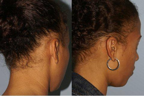 Follicular Unit Hair Grafting before and after photos in San Francisco, CA, Patient 13820