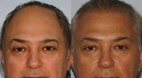Repair of prior hair plug cases before and after photos in San Francisco, CA, Patient 13885