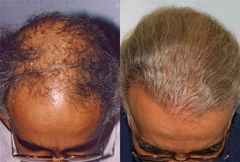 Repair of prior hair plug cases before and after photos in San Francisco, CA, Patient 13892