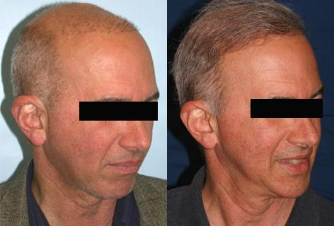 Repair of prior hair plug cases before and after photos in San Francisco, CA, Patient 13902