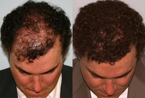 Repair of prior hair plug cases before and after photos in San Francisco, CA, Patient 13907