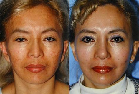 Chemical Resurfacing before and after photos in San Francisco, CA, Patient 14355