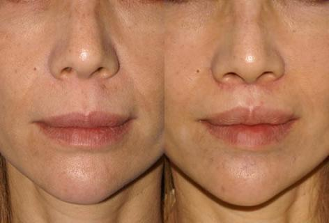 Sub Nasal Lip Lift before and after photos in San Francisco, CA, Patient 14358