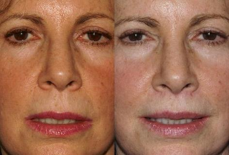 Sub Nasal Lip Lift before and after photos in San Francisco, CA, Patient 14363