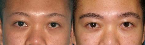 Hair Eyebrow Transplant before and after photos in San Francisco, CA, Patient 14370