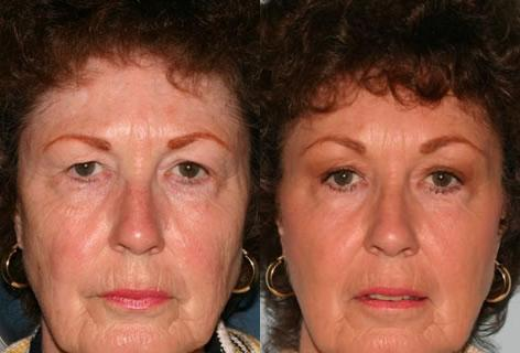 Blepharoplasty before and after photos in San Francisco, CA, Blepharoplasty in San Francisco, CA
