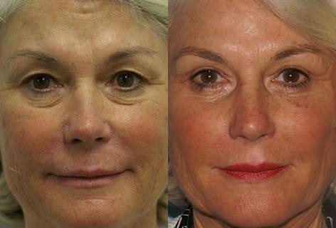 Blepharoplasty before and after photos in San Francisco, CA, Patient 12951