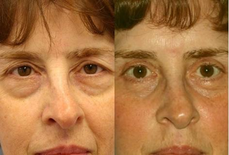 Blepharoplasty before and after photos in San Francisco, CA, Patient 12954
