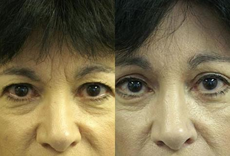 Blepharoplasty before and after photos in San Francisco, CA, Patient 12957