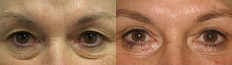 Blepharoplasty before and after photos in San Francisco, CA, Patient 12960