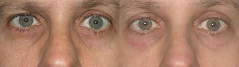 Blepharoplasty before and after photos in San Francisco, CA, Patient 12963