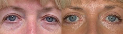 Blepharoplasty before and after photos in San Francisco, CA, Patient 12966