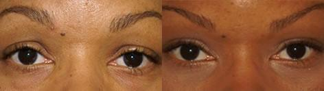 Blepharoplasty before and after photos in San Francisco, CA, Patient 12969