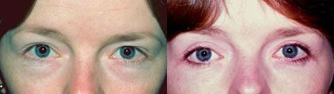 Blepharoplasty before and after photos in San Francisco, CA, Patient 12981