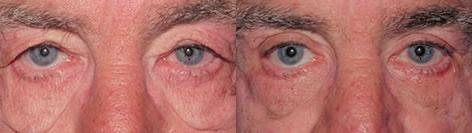 Blepharoplasty before and after photos in San Francisco, CA, Patient 12984