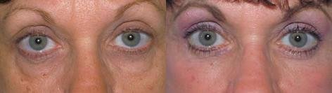 Blepharoplasty before and after photos in San Francisco, CA, Patient 12987