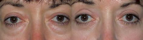 Blepharoplasty before and after photos in San Francisco, CA, Patient 12993