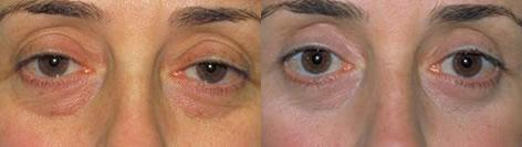 Blepharoplasty before and after photos in San Francisco, CA, Patient 12996