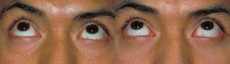Blepharoplasty before and after photos in San Francisco, CA, Patient 12999