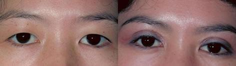Blepharoplasty before and after photos in San Francisco, CA, Patient 13002