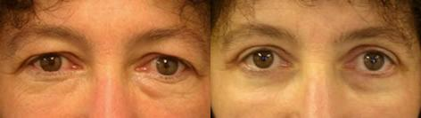 Blepharoplasty before and after photos in San Francisco, CA, Patient 13005