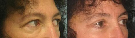 Blepharoplasty before and after photos in San Francisco, CA, Patient 13008