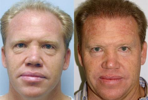 Blepharoplasty before and after photos in San Francisco, CA, Patient 13011