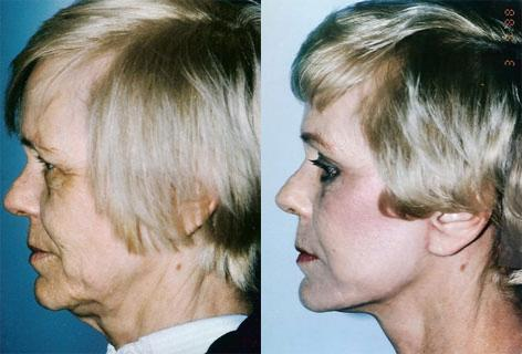 Blepharoplasty before and after photos in San Francisco, CA, Patient 13017
