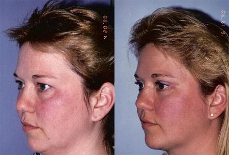 Blepharoplasty before and after photos in San Francisco, CA, Patient 13041