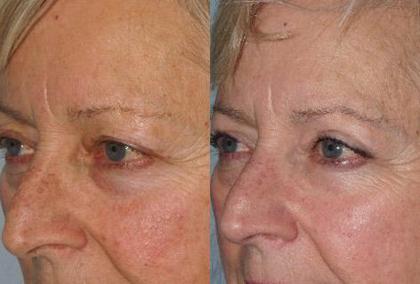 Blepharoplasty before and after photos in San Francisco, CA, Patient 13068