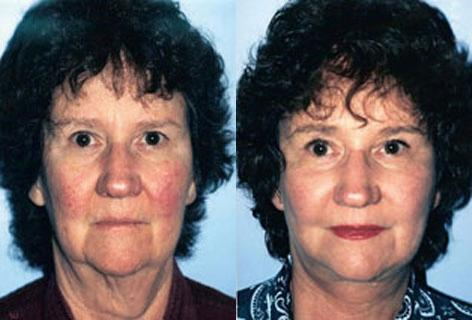 Browlift before and after photos in San Francisco, CA, Patient 13073