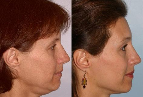 Browlift before and after photos in San Francisco, CA, Patient 13078