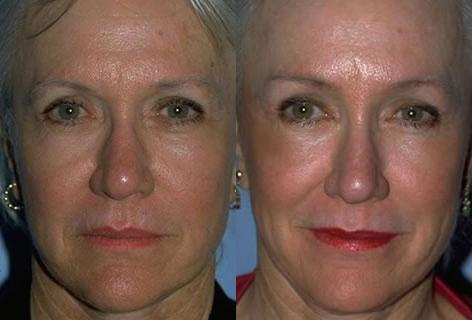 Browlift before and after photos in San Francisco, CA, Patient 13088