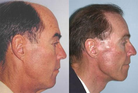 Browlift before and after photos in San Francisco, CA, Patient 13091